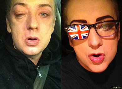 Boy George Assaulted Outside Club, Tweets Photos
