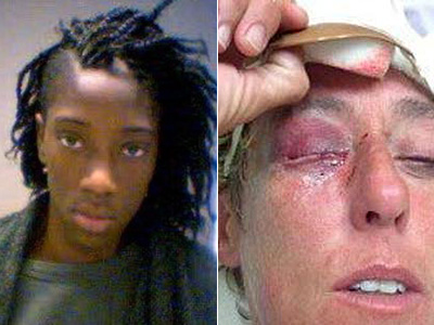 Missouri Teen Charged With Hate Crime for Lesbian Attack