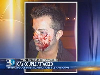 Couple Says They Were Beaten in Asheville for Being Gay