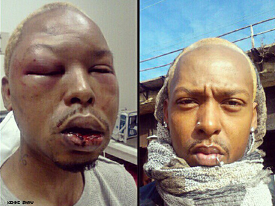 Gay Baltimore Man Says Beating Was A Hate Crime