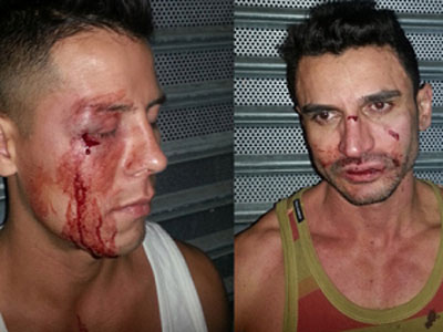 Two Arrested in Attack on Gay Men in NYC