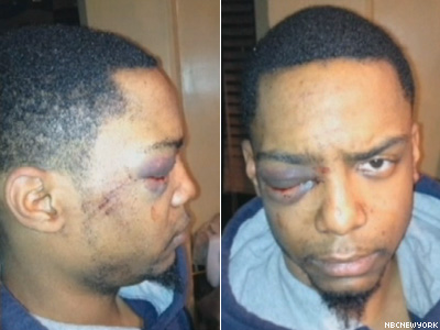 Gay Man Allegedly Assaulted by Hasidic Gang in New York