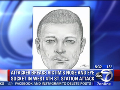 Police Release Sketch of Man Suspected of Antigay Attack