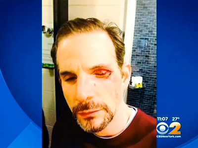 WATCH: Gay Couple Attacked in NYC on 10th Anniversary