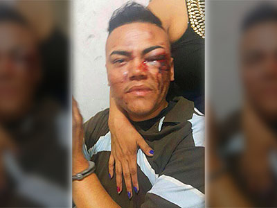 Salvadoran Trans Man Says He Was Brutalized by Police After Pride Parade