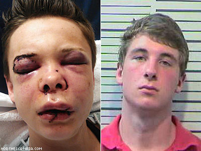 Young Lesbian in Brutal Attack on Thanksgiving Day