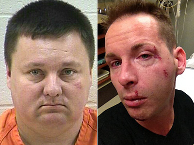 Wisconsin Won't Charge Suspect With Hate Crime After Knocking Gay Man Unconscious