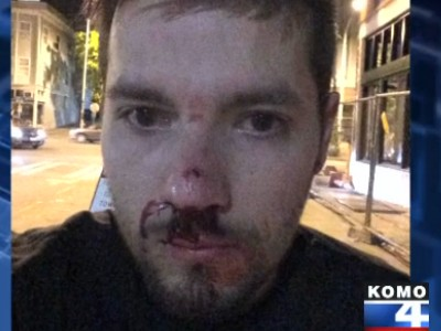Gay Couple Recovering from Broken Bones After Attack at Seattle Pride